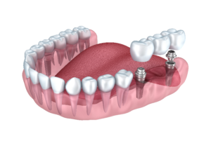 Dental implants, procedure, care and benefits of dental implants